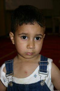 Hamzah nach der rettenden Herz-OP