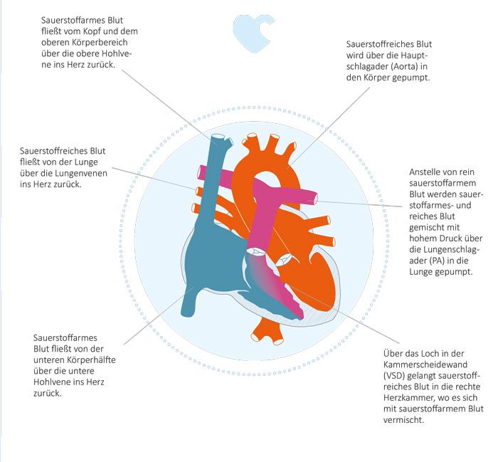 Kompetenznetz Angeborene Herzfehler